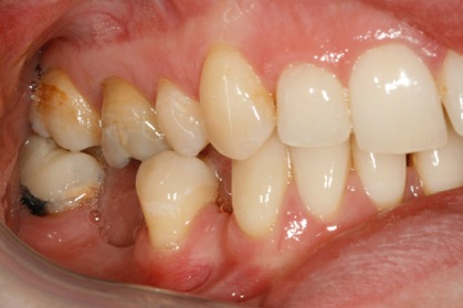 crown-implant-1-before