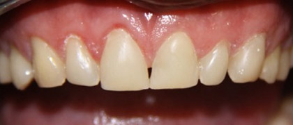 fillings-1-after