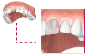 patients-individual-tooth-replacement-1