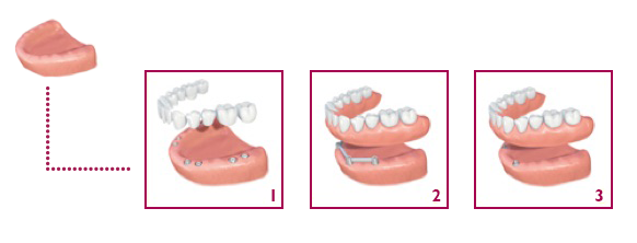patients-replacement-of-all-tooth