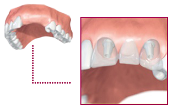 patients-replacement-of-more-tooth-1