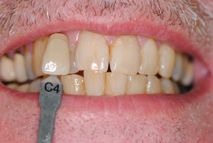 whitening-1-before